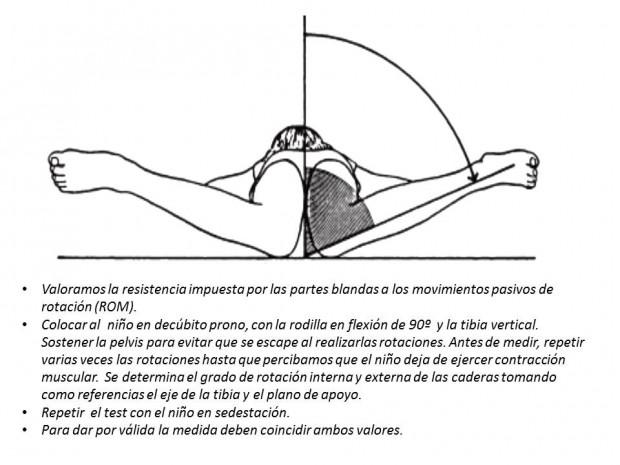 test Staheli medir antetorsion femoral a través rotaciones caderas