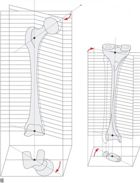 torsión huesos largos artículo Accadbled et cols