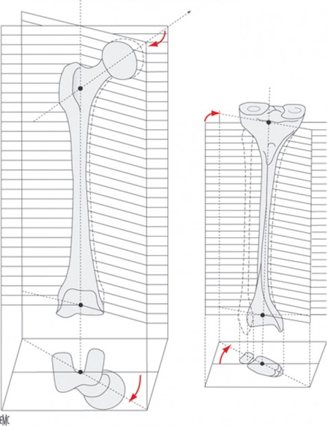 torsion huesos largos
