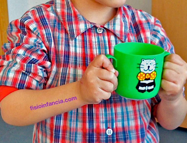 terapia de mano y niños con daño neurológico, fisioinfancia.com